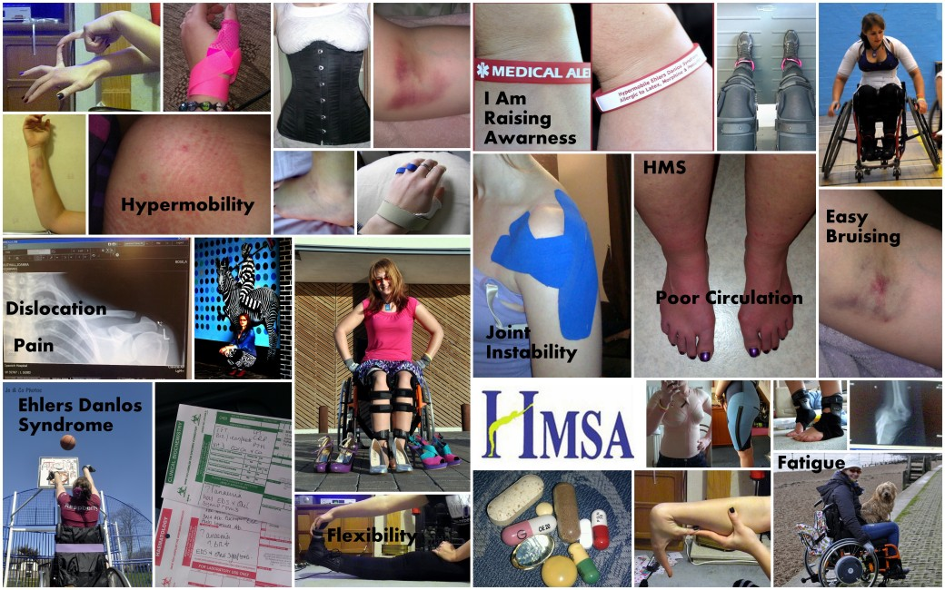 May is EDS Awareness month! I have Hypermobile Ehlers Danlos Syndromw
